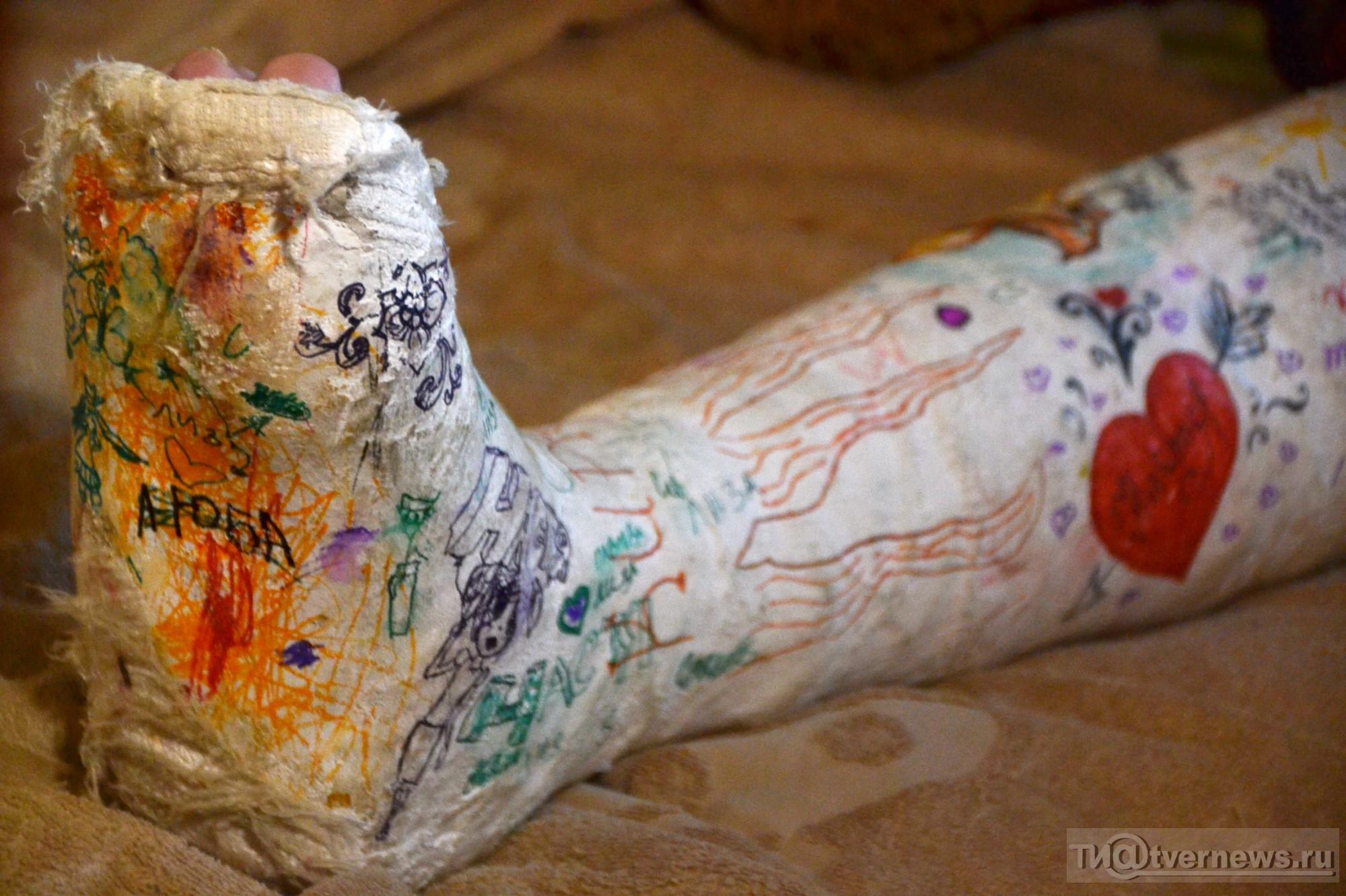 Смешные картинки нога в гипсе
